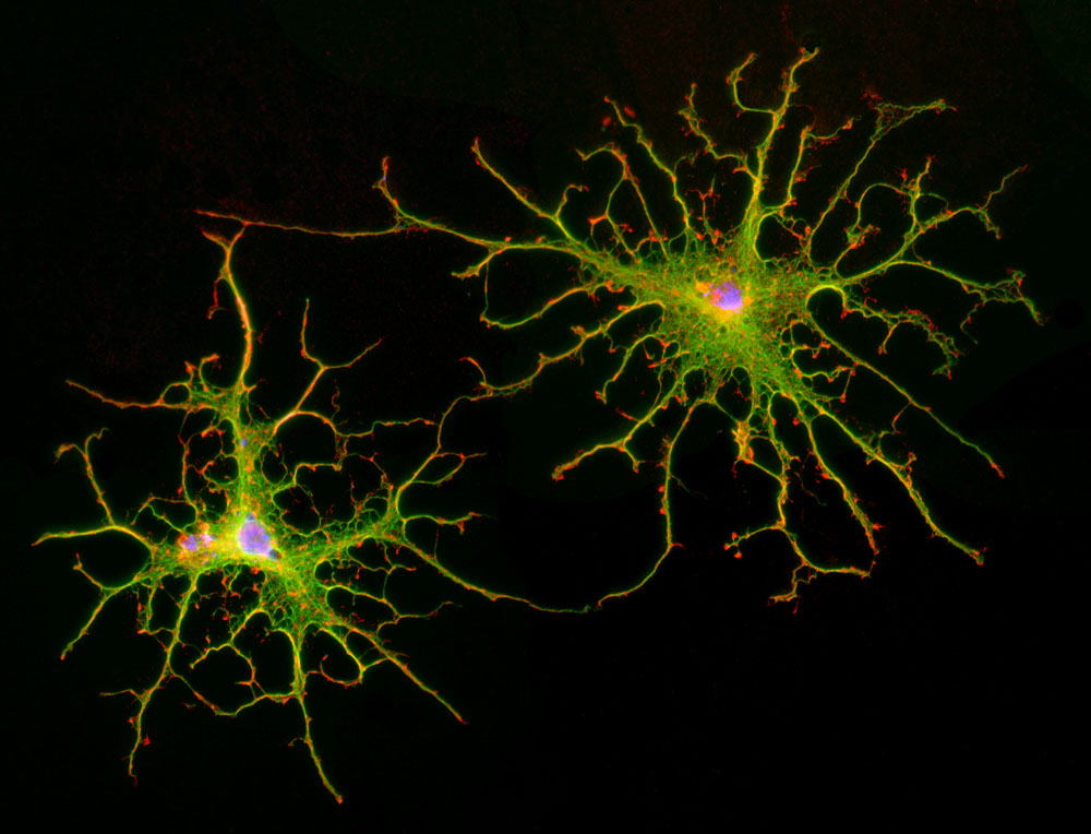 Cell Portraits Astrocytes - stellated