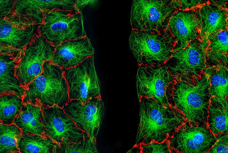 Fibroblasten am Wundrand - Cell Portraits